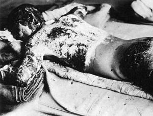 790px-Victim_of_Atomic_Bomb_002